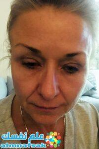 موقع علم نفسك 2 200x300 - امرأة ترتدي ماسكارا على السرير لمدة 25 عاما ولا تغسل وجهها أبدا - انظر تحت جفنها